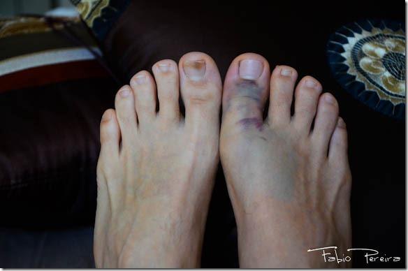 broken toe foot pe quebrado-1