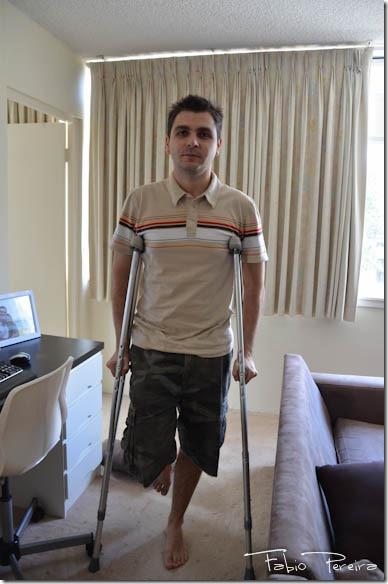 broken toe foot pe quebrado-14