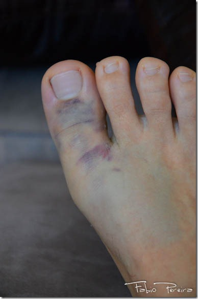 broken toe foot pe quebrado-7